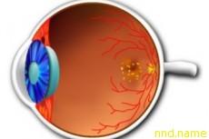Терапию эмбриональными клетками испытают на слепых пациентах