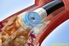 Новый мощный лазер испепеляет ткани