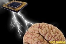 Машинно-мозговой интерфейс в реабилитации пациентов