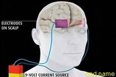 Электростимуляция мозга вернет людей к жизни