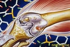 Лечения остеоартрита с помощью стволовых клеток