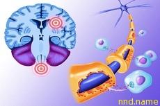 Простой метод диагностики рассеянного склероза