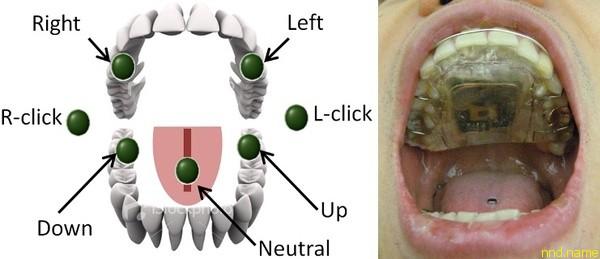 Стоматологическая система управления электроколяской