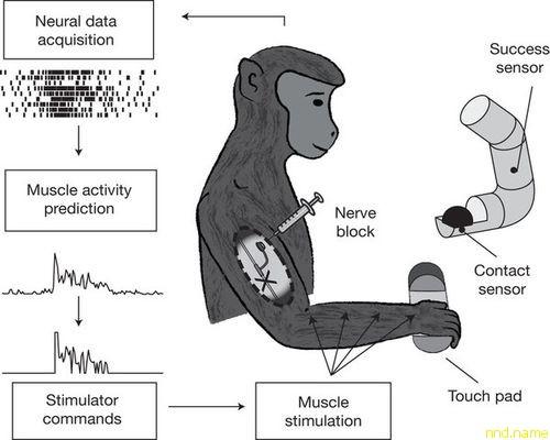 технология, позволяющая восстановить движения в руках при высоком уровне поражения спинного мозга