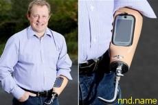Смартфон Nokia C7 встроили в ручной протез