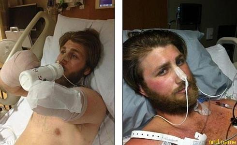 Несколько месяцев Тейлор пролежал в госпитале, увешанный трубками