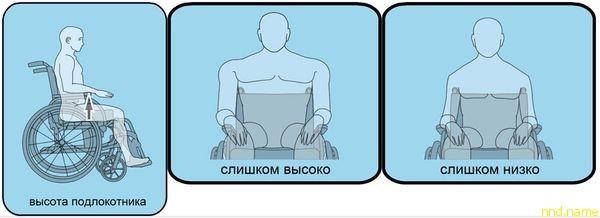 В положении «сидя» у пациента измеряется расстояние от основания локтя до верхнего края сиденья