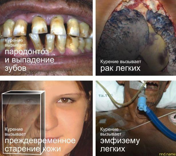 Эти изображения были утверждены Советом по здравоохранению стран ЕврАзЭС и одобрены экспертным советом при Минздравсоцразвития России