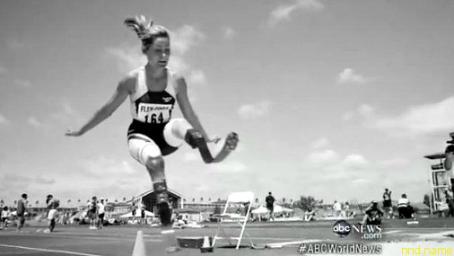 Эйми Маллинз была первой девушкой в мире с обеими ампутированными ногами, прыгавшей в длину!
