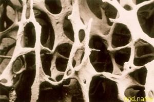 Искусственные кости с использованием стволовых клеток