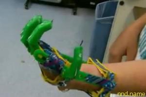 Сделал своему сыну функциональный протез на 3-D принтере