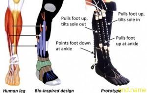 Роботизированный протез изменит современную реабилитацию