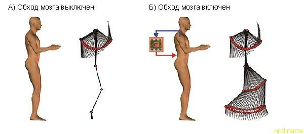 подключить ноги человека к его мозгу, минуя поврежденную часть позвоночника