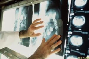 Переломный момент? Половина пациентов с онкологией выживает