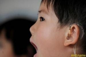 Ученые подарили голос немым детям
