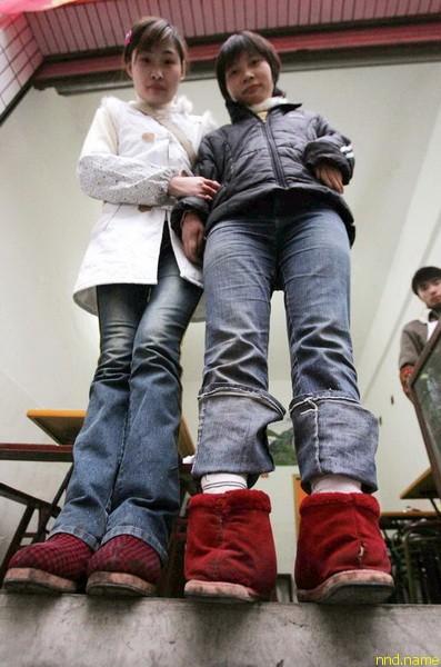 Китаянка с перевернутыми стопами шокировала врачей