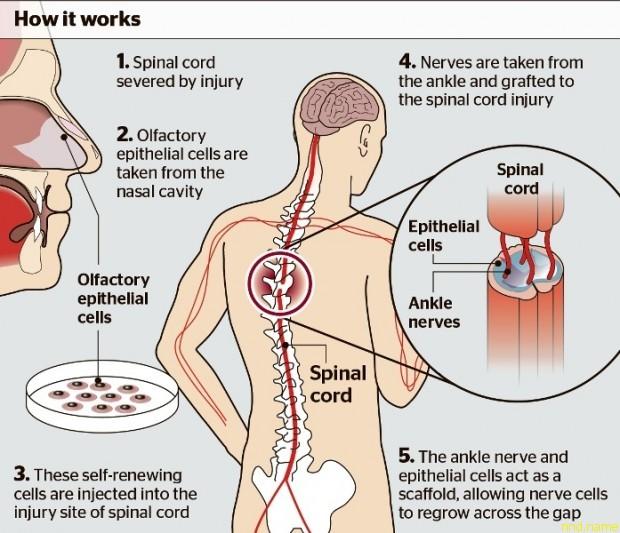 Трансплантация клеток позволила вернуть подвижность конечностям