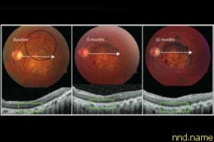 Стволовые клетки вылечили тяжелые болезни глаз