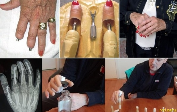 В Зауралье изобрели протез, аналогов которому нет