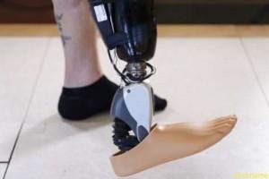 Бионический протез Ossur управляется мыслью