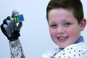 Самый молодой обладатель бионической руки