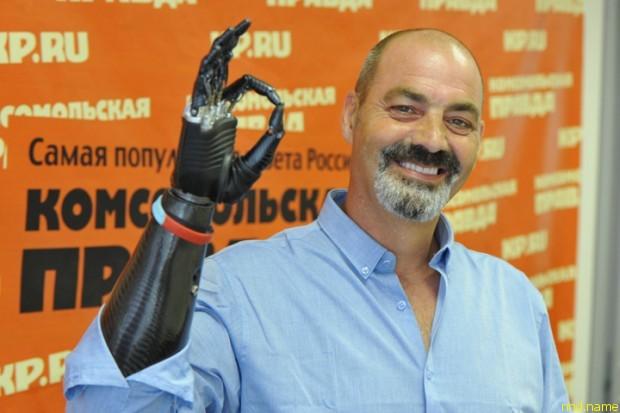 Найджел Экланд, человек с бионической рукой