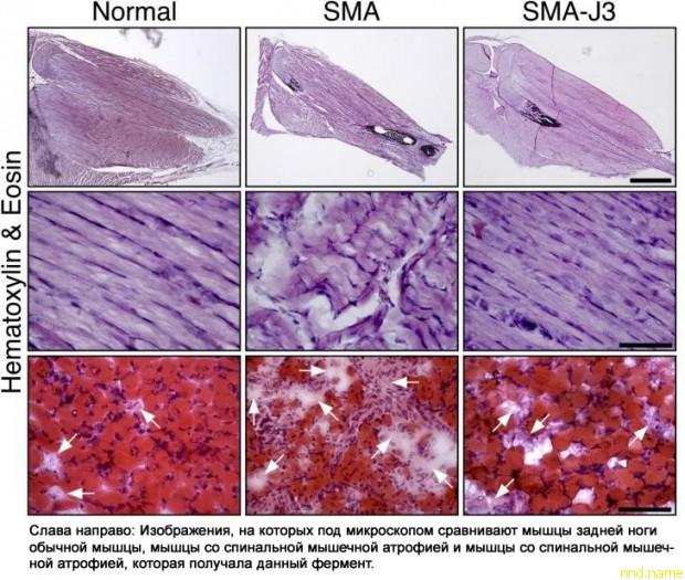 Нейробиологи открыли фермент JNK3, играющий роль при СМА
