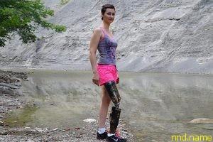 Жить без ноги - Главное не сдаваться