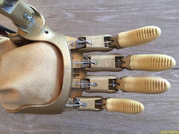 Все пластиковые и металлические детали конструкции протеза печатаются на промышленных 3d принтерах