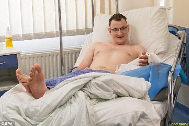 Хирурги совершили революцию: они подарили руку человеку, рожденному без конечности