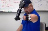 Бионический протез управляемый мыслью