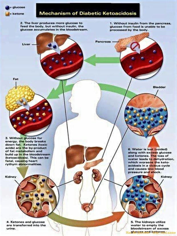 Метаболическое расстройство Ketoacidosis при SMA