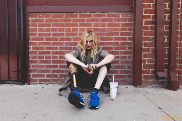 Лорен Вассер, потерявшая ногу из-за токсического шока
