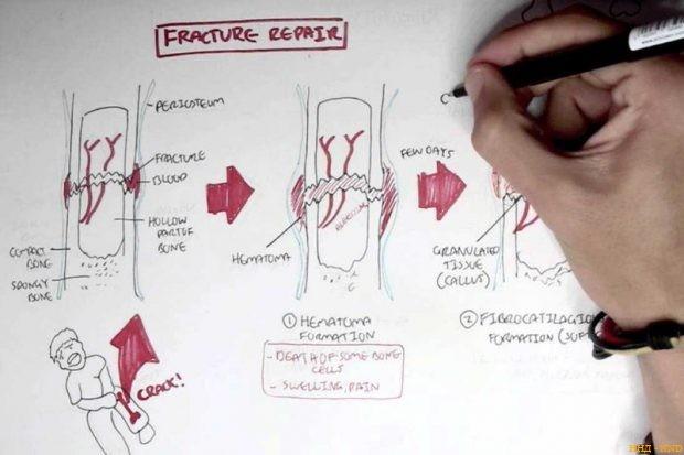 3D-печать биоразлагаемых имплантов помогает выращивать кости
