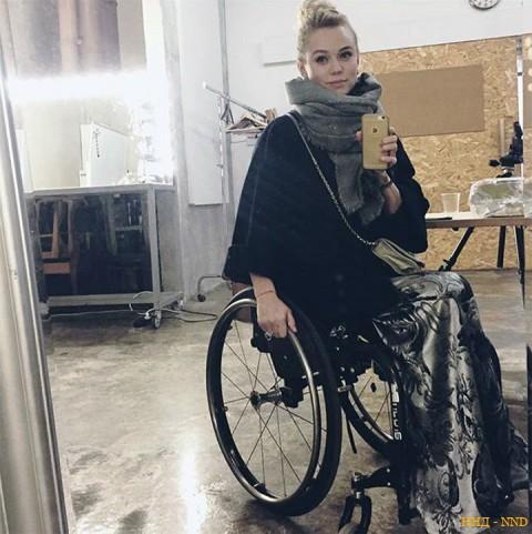 Они красивы, успешны и довольны жизнью, несмотря на инвалидность