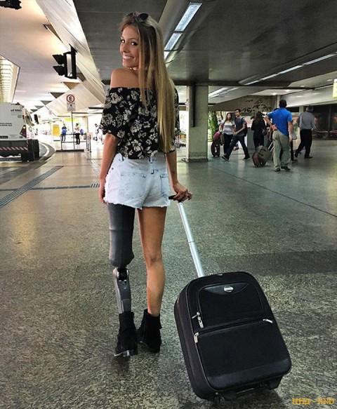 Протез не мешает Антонини много путешествовать