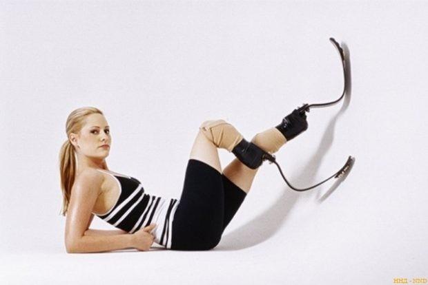 Красивые и горячие: модели с инвалидность Эйми Маллинз