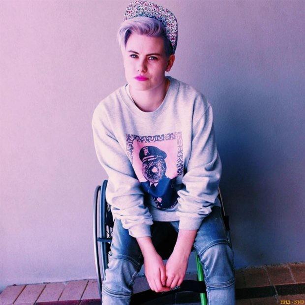 Красивые и горячие: модели с инвалидность - Робин Ламберт