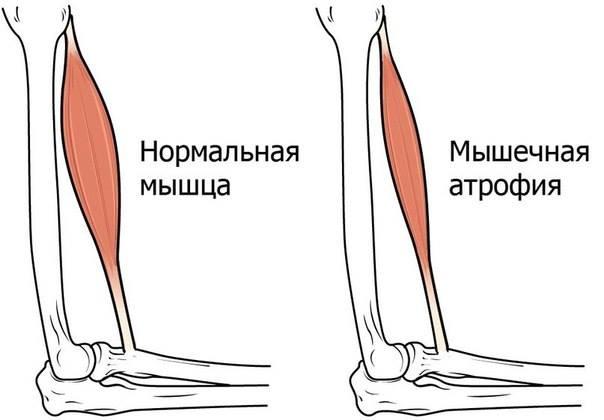 Признаки атрофиипри СМАобычно начинаются в мышцах рук, ног и языка, и распространяются к другим областямтела