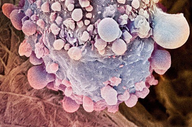 Жидкая биопсия диагностирует редкий вид рака на ранней стадии
