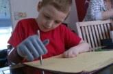 Бионический мальчик с двумя роботизированными протезами
