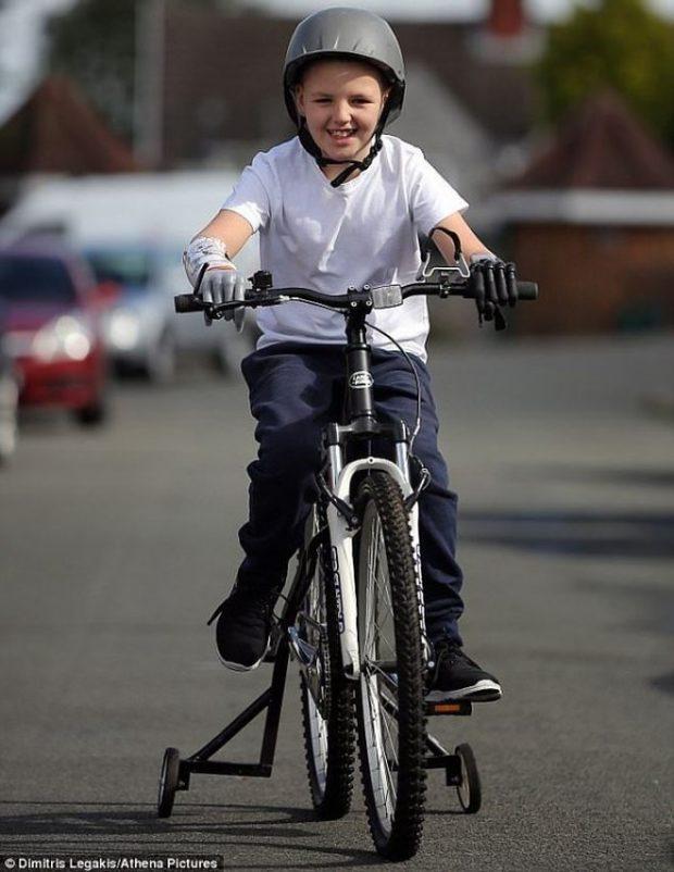 Алан Гиффорд – самый юный «бионический мальчик» с двумя роботизированными протезами