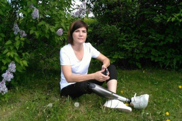 Не инвалид, а киборг. Как живется девушке с бионическим протезом ноги