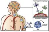Излечение человеков с помощью генной терапии