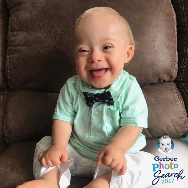 Полуторагодовалый малыш с синдромом Дауна стал лицом американского бренда детского питания