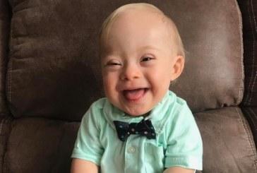 Малыш с синдромом Дауна стал лицом бренда Gerber