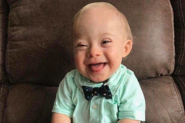 Малыш с синдромом Дауна стал лицом американского бренда детского питания