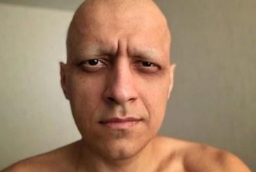 Эдуард Мацаберидзе – Теперь я инвалид