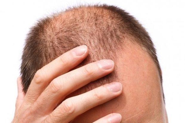 Светодиодный фотостимулятор поможет вернуть утраченные волосы