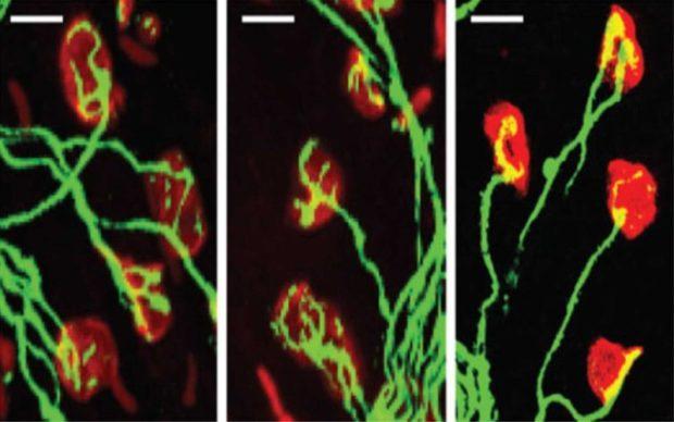 Введение антисмысловых РНК восстанавливает нейромышечные синапсы (красный). Мышиная модель, 2011 год